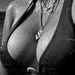 Brystforstørrende operation?