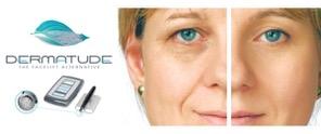 Dermatude behandling – Alternativet til ansigtsløft