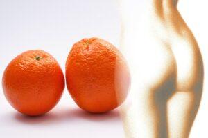 Bestil en cellulite behandling og få bugt med appelsinhuden.